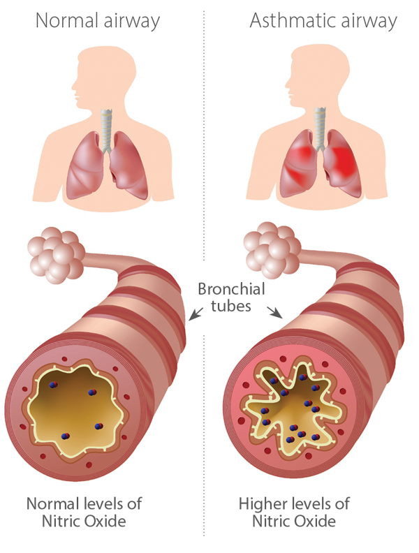 Infographic of Normal and Asthmatic airways